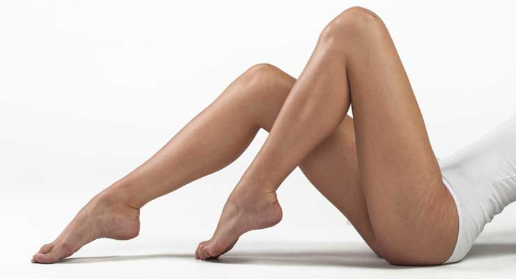 get rid of stretch marks on the thighs